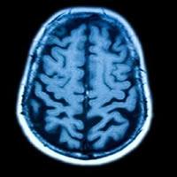 Memória subconsciente estimula o consumo