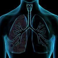 Abuso de álcool pode causar câncer de pulmão
