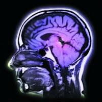 Álcool altera química do cérebro de adolescentes